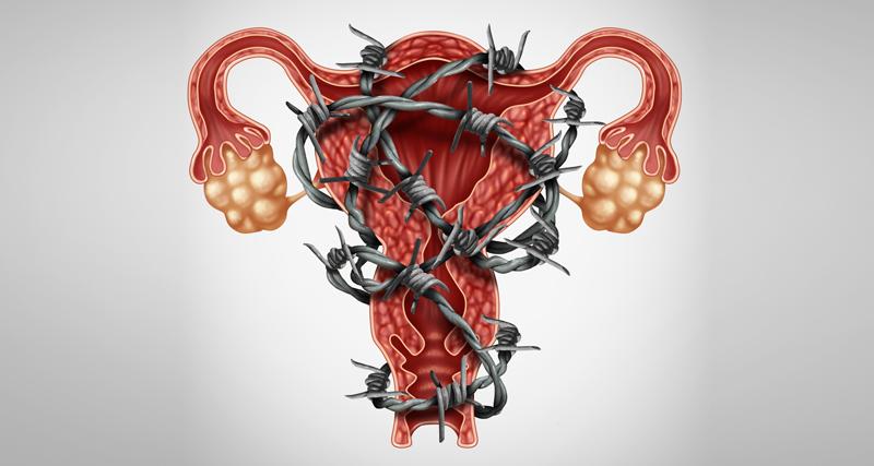 Ilustração de útero envolto a arame farpado ilustrando endometriose | Instituto Kemp