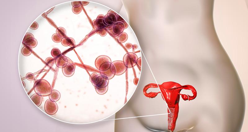 Ilustração de um útero com vulvovaginite | Instituto Kemp